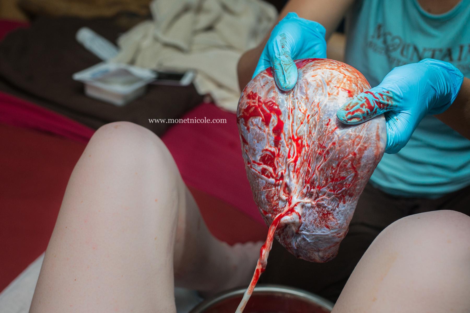 Placenta 3